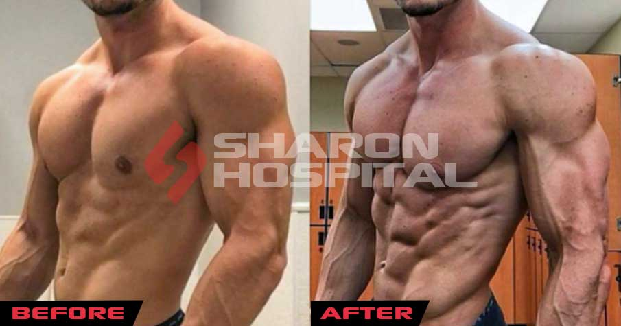 Omnadren 250 results before and after