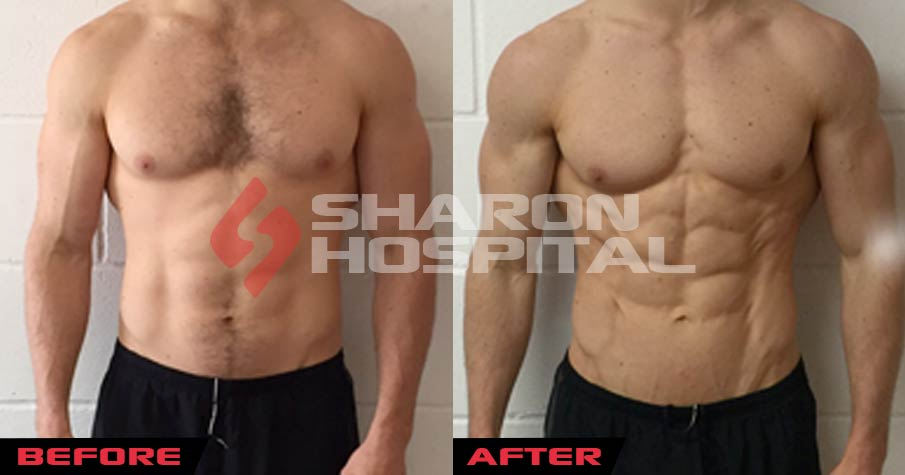 steroids results before and after